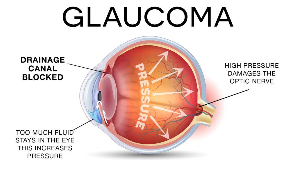 Glaucoma Graph