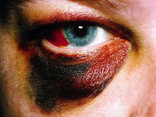 Example of Orbital Trauma